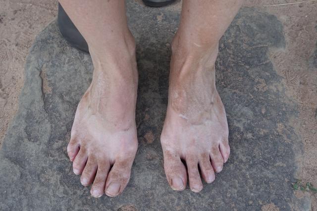 this is what 12-miles-walking-in-flip-flops-dirty looks like