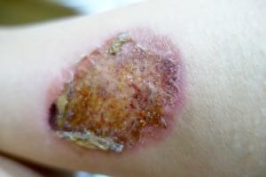 gruesome burn:(